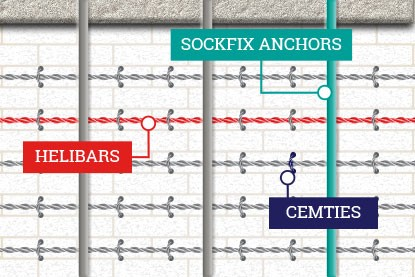 PARS system diagram showing SockFix anchors, Helibars and Cemties